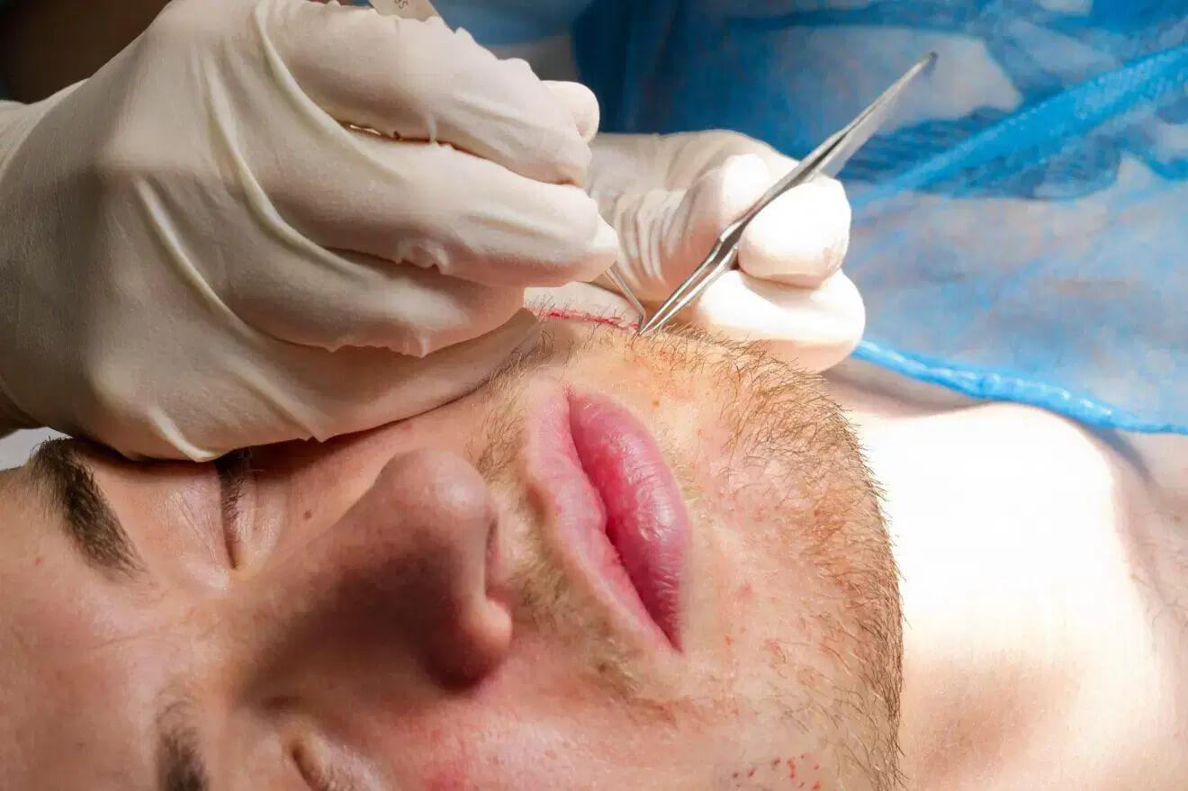 bankofhair-barttransplantation