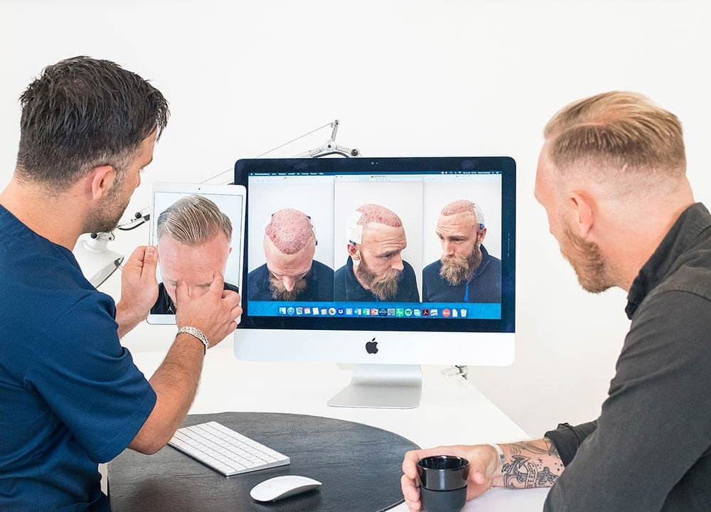 bankofhair-haartransplantation