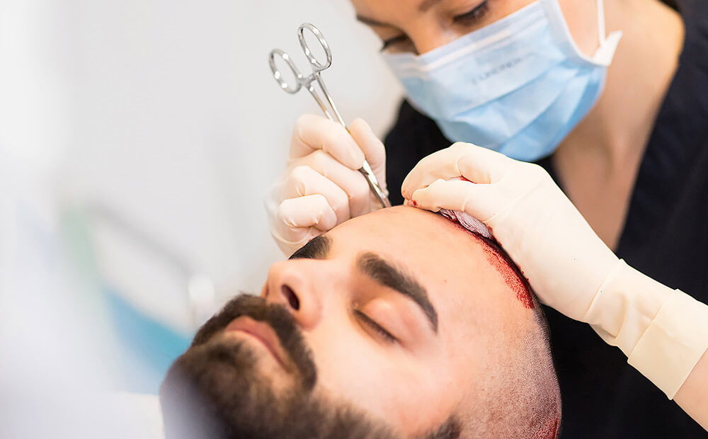 Haartransplantation DHI