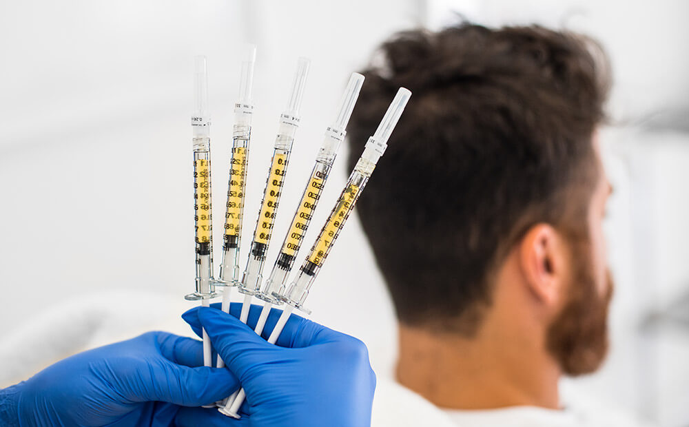 bankofhair-haartransplantation-bankofhair-prp-behandlung