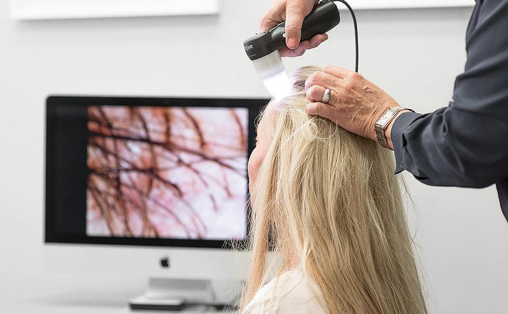 Bank of Hair - Haartransplantation Frauen